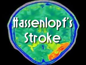 Hassenlopf's Stroke by Gary Cuba